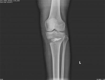 Post-operative AP X-ray of the knee after HTO with the iBalance system.