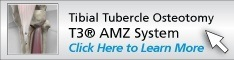 Tibial Tubercle Osteotomy using the T3® AMZ System