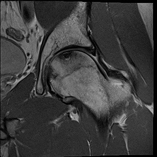MRI of the Hip showing AVN of the femoral head without collapse