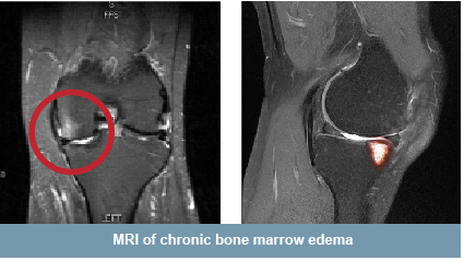 Chronic BME can only be seen on MRI.