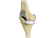 Total Knee Replacement (TKR)